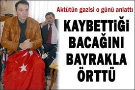 http://dosyalar.hurriyet.com.tr/haber_resim/bacagini_kaybetti.jpg
